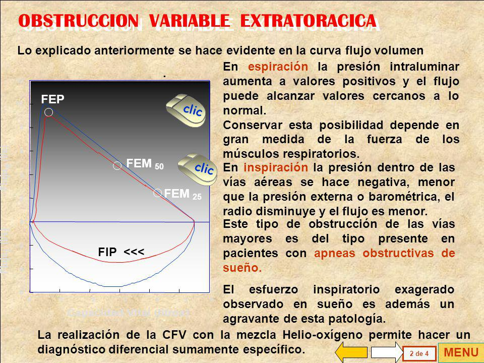 OBSTRUCCION VARIABLE EXTRATORACICA
