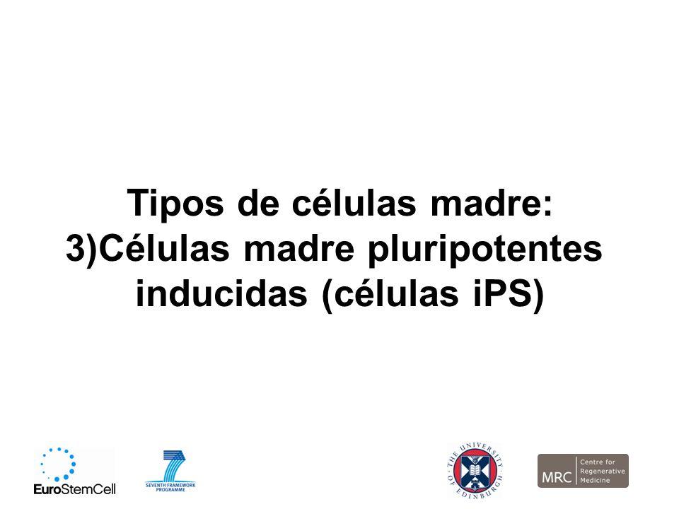 Tipos de células madre: 3)Células madre pluripotentes