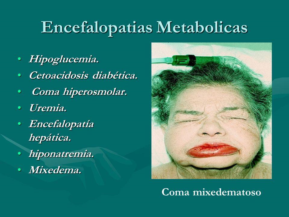 Encefalopatias Metabolicas