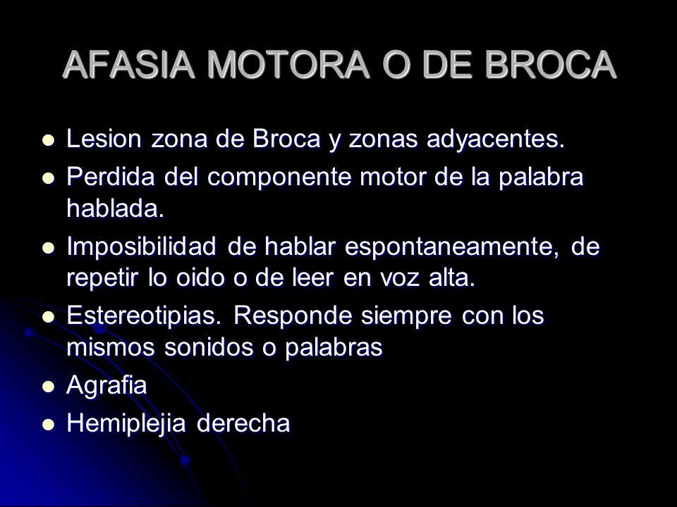 AFASIA MOTORA O DE BROCA
