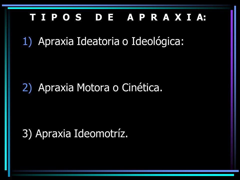 Apraxia Ideatoria o Ideológica: