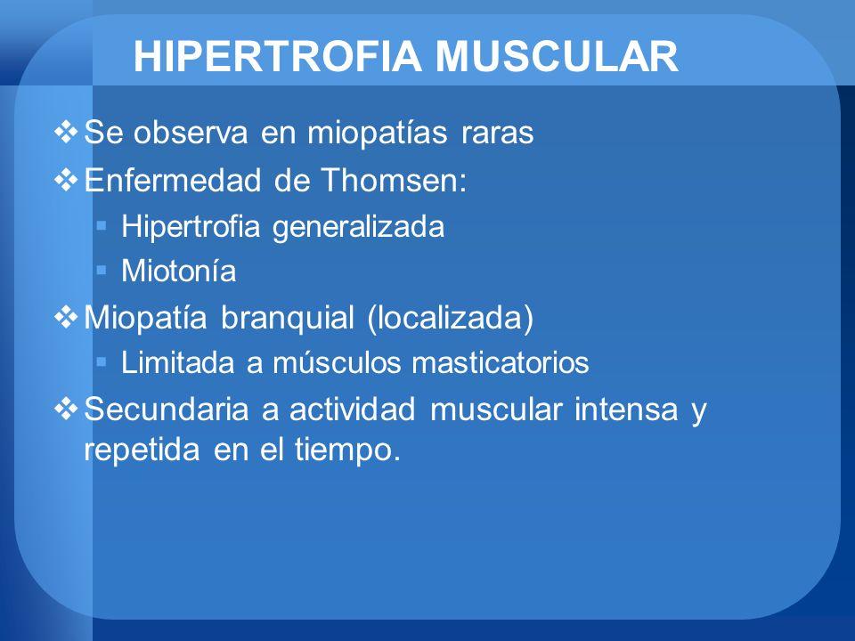 HIPERTROFIA MUSCULAR Se observa en miopatías raras