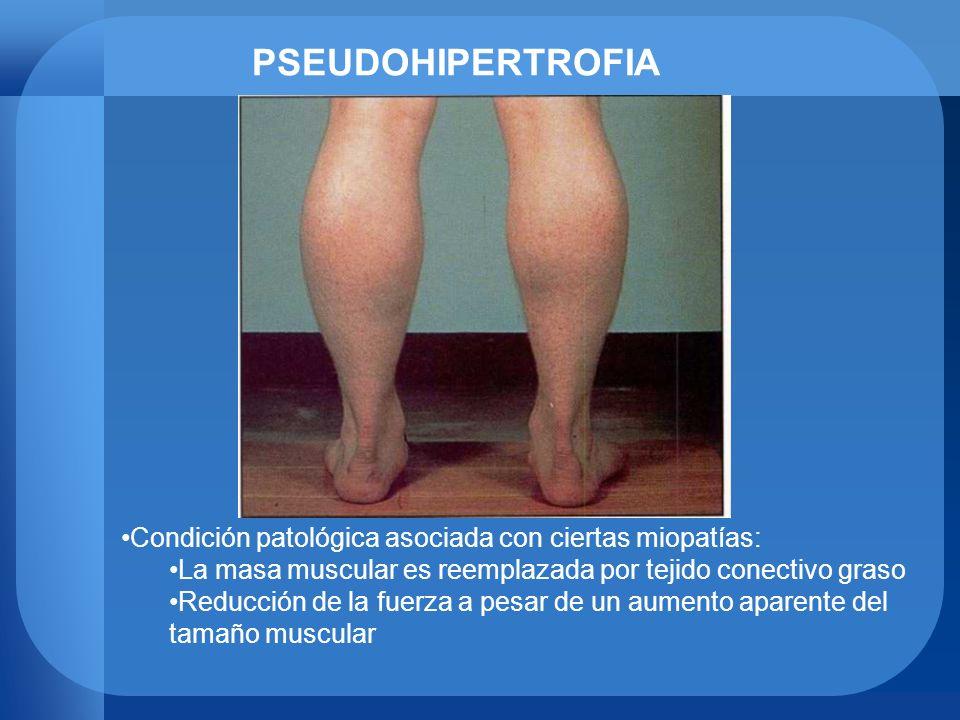 PSEUDOHIPERTROFIA Condición patológica asociada con ciertas miopatías: