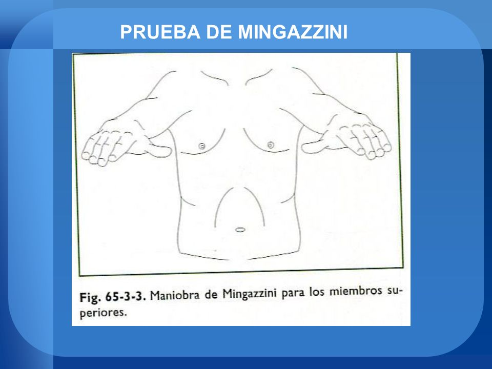 PRUEBA DE MINGAZZINI