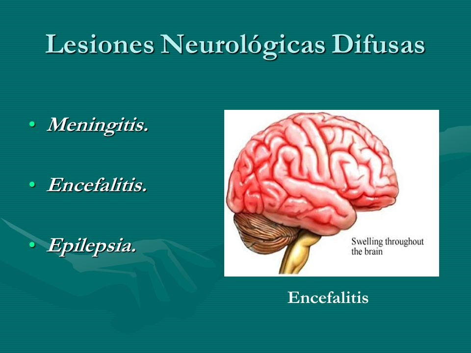 Lesiones Neurológicas Difusas