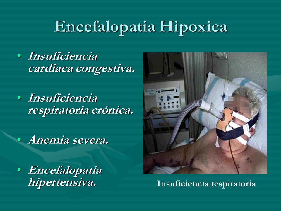 Encefalopatia Hipoxica