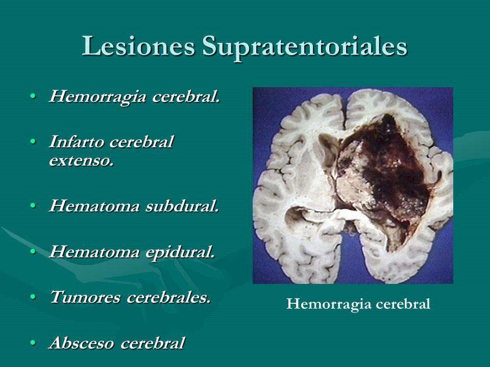 Lesiones Supratentoriales