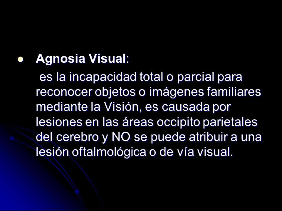 Agnosia Visual: