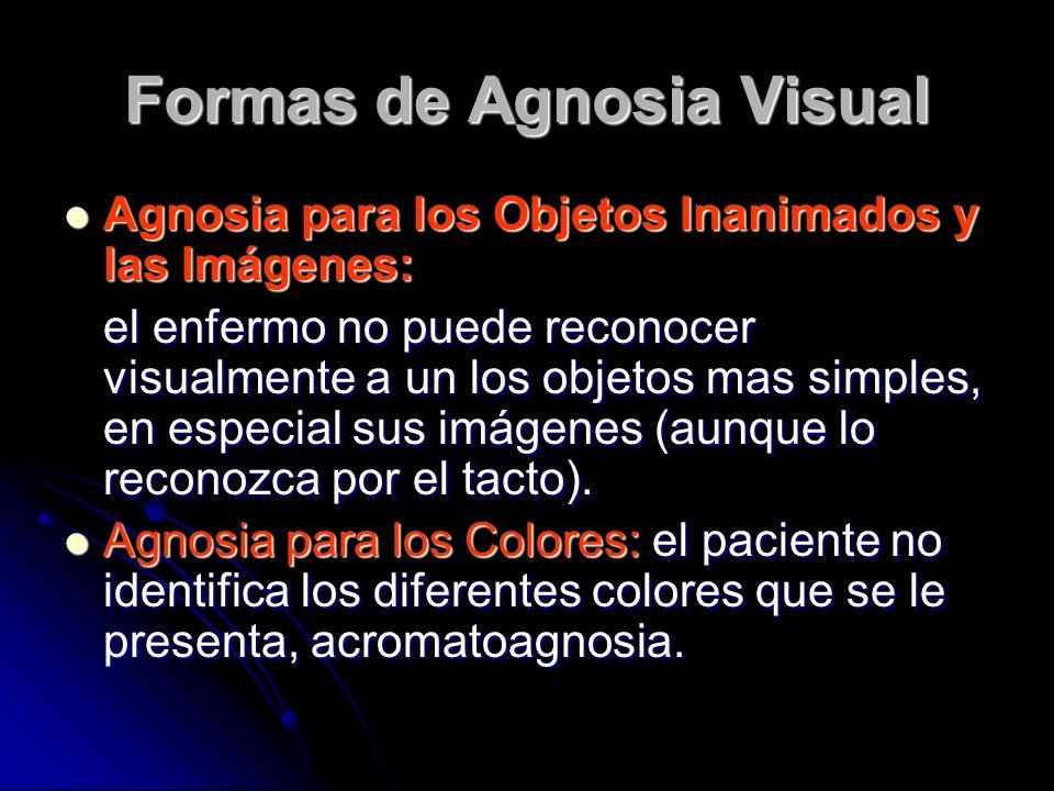 Formas de Agnosia Visual