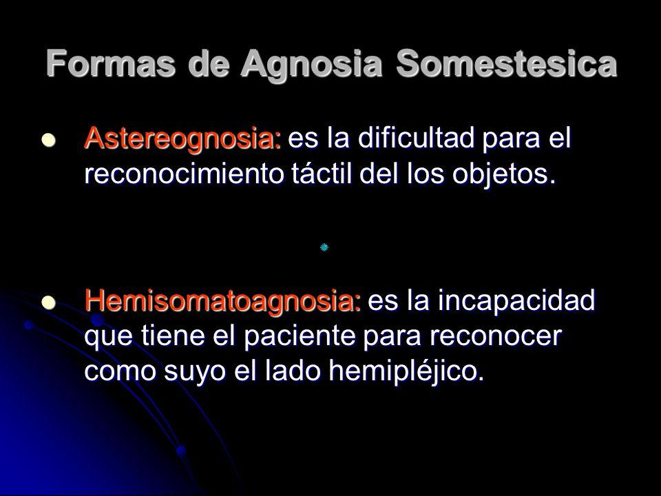 Formas de Agnosia Somestesica