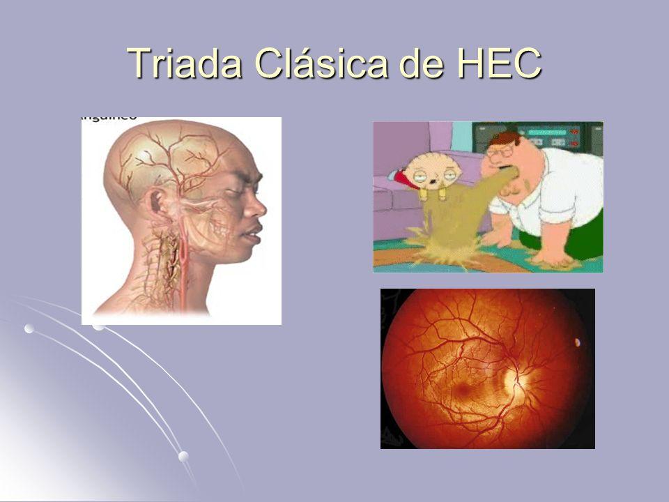 Triada Clásica de HEC