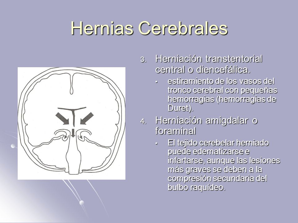 Hernias Cerebrales Herniación transtentorial central o diencefálica.