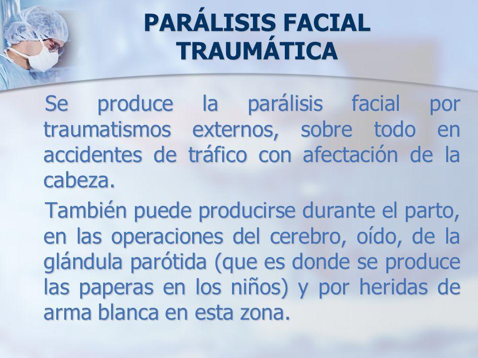 PARÁLISIS FACIAL TRAUMÁTICA