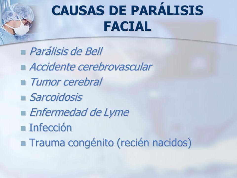 CAUSAS DE PARÁLISIS FACIAL