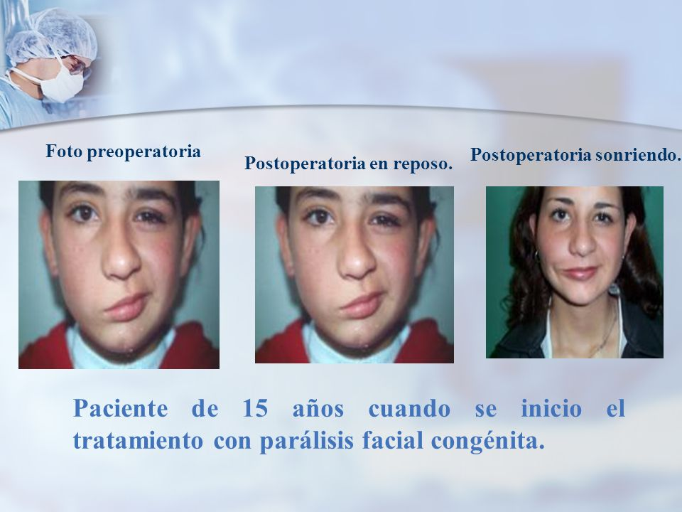 Foto preoperatoria Postoperatoria sonriendo. Postoperatoria en reposo.