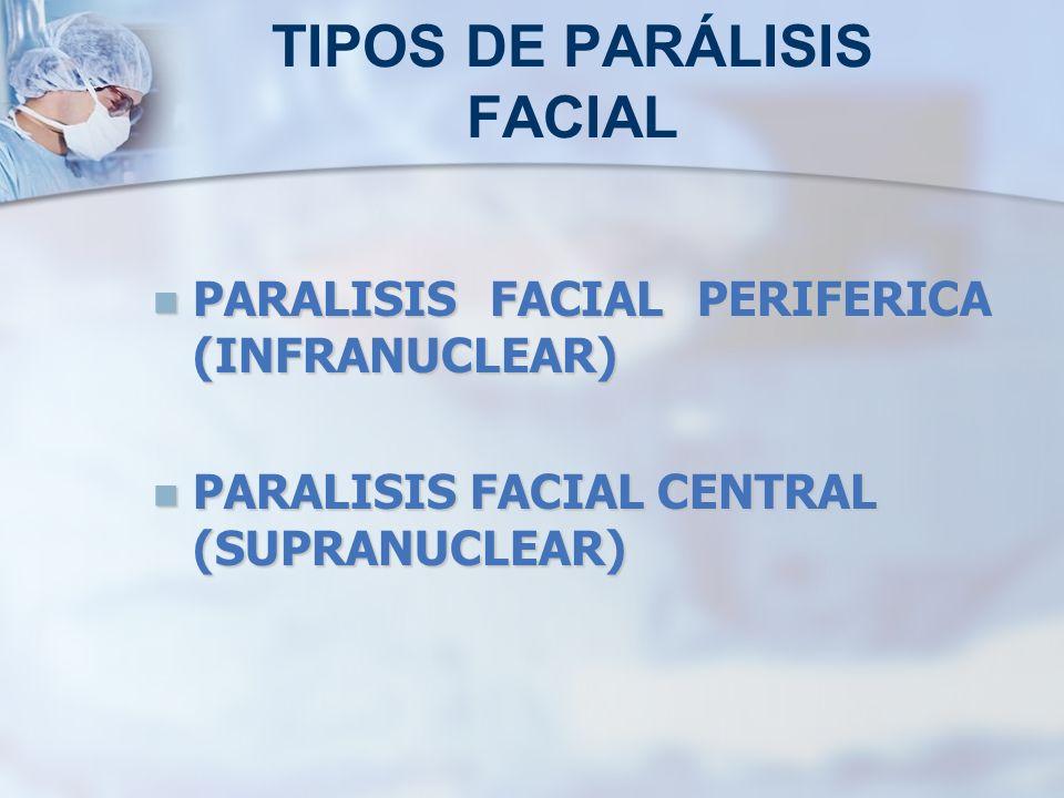 TIPOS DE PARÁLISIS FACIAL