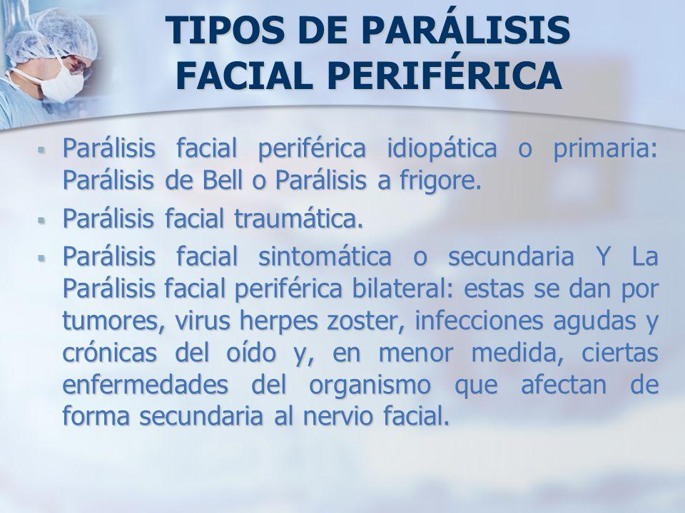 TIPOS DE PARÁLISIS FACIAL PERIFÉRICA