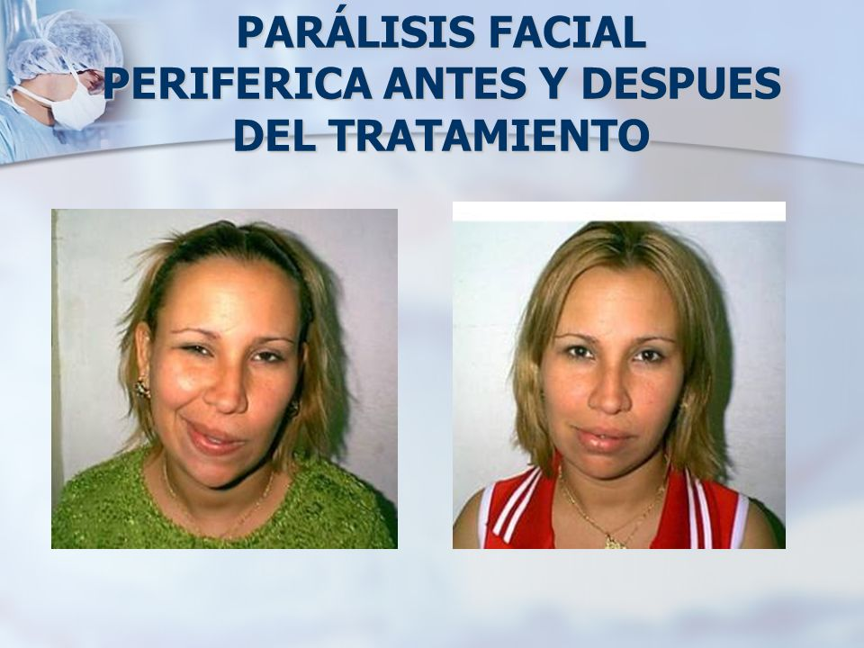 PARÁLISIS FACIAL PERIFERICA ANTES Y DESPUES DEL TRATAMIENTO