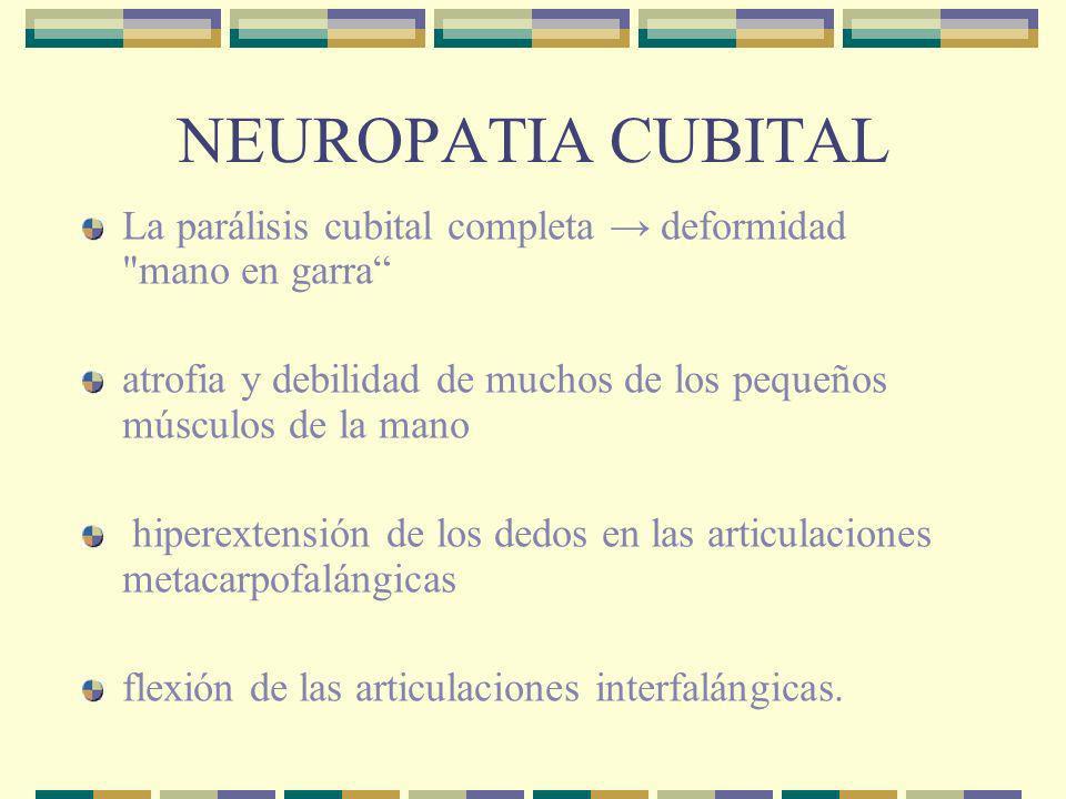 NEUROPATIA CUBITALLa parálisis cubital completa → deformidad mano en garra atrofia y debilidad de muchos de los pequeños músculos de la mano.
