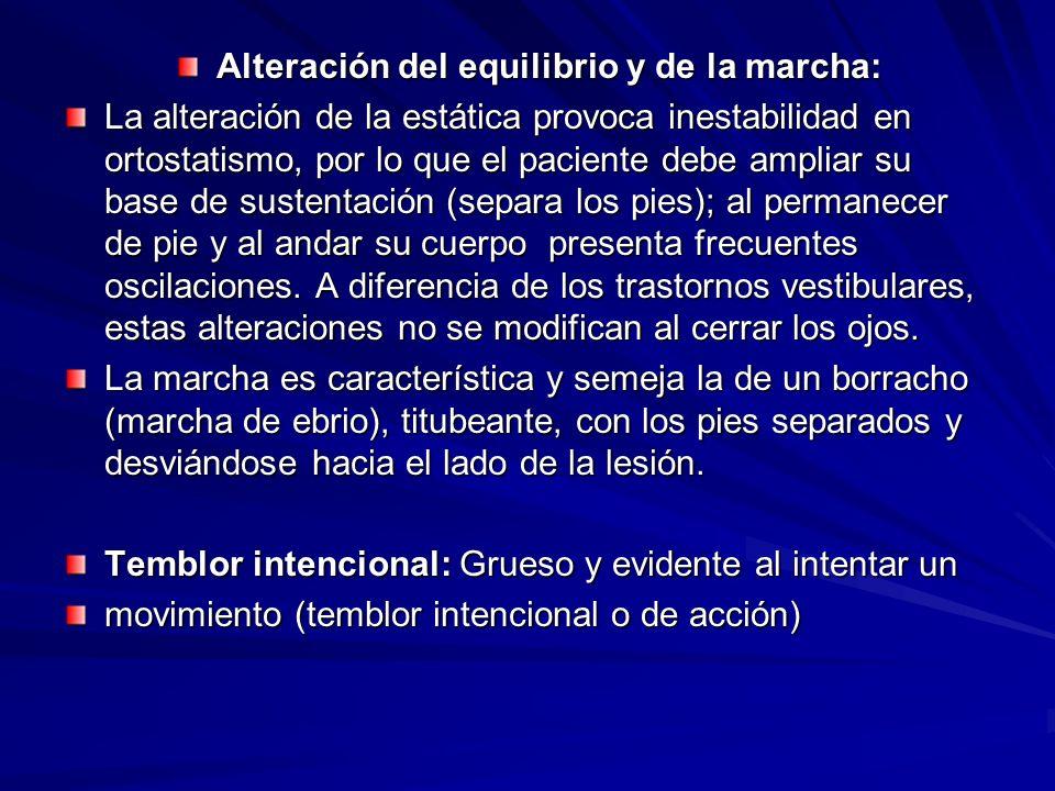 Alteración del equilibrio y de la marcha: