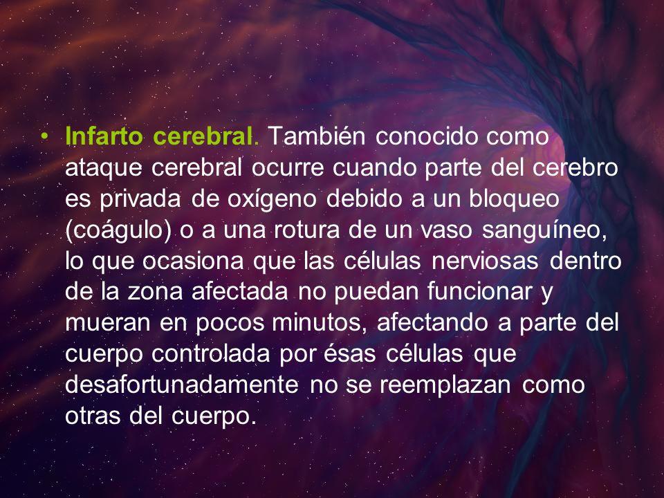 Infarto cerebral.