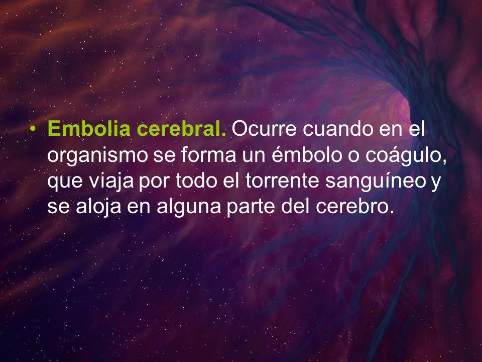 Embolia cerebral.