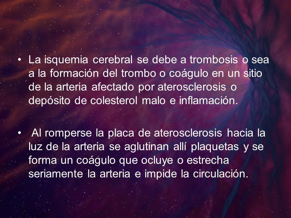 La isquemia cerebral se debe a trombosis o sea a la formación del trombo o coágulo en un sitio de la arteria afectado por aterosclerosis o depósito de colesterol malo e inflamación.