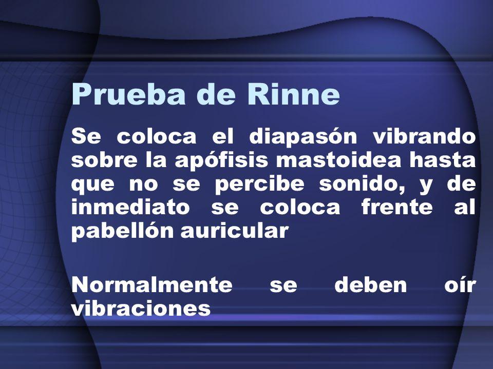 Prueba de Rinne