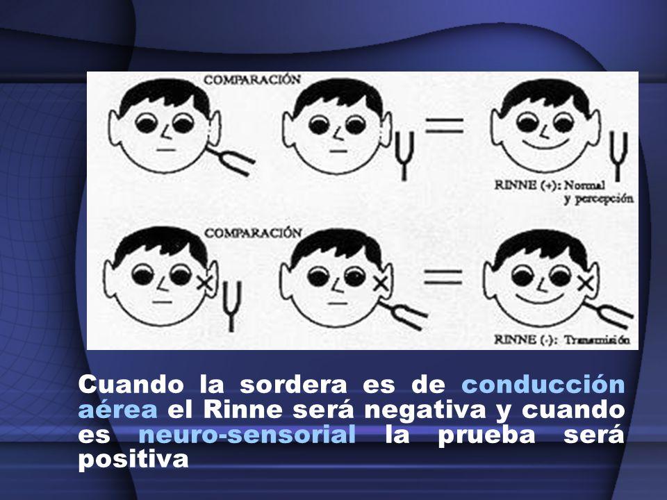 Cuando la sordera es de conducción aérea el Rinne será negativa y cuando es neuro-sensorial la prueba será positiva