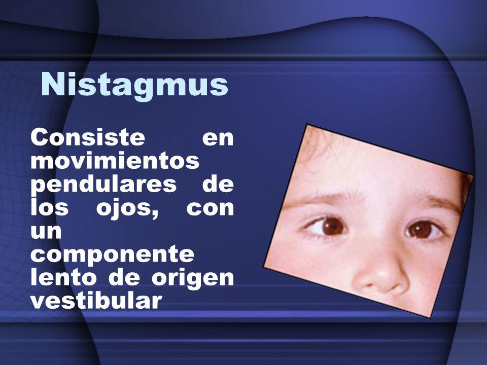 Nistagmus Consiste en movimientos pendulares de los ojos, con un componente lento de origen vestibular.