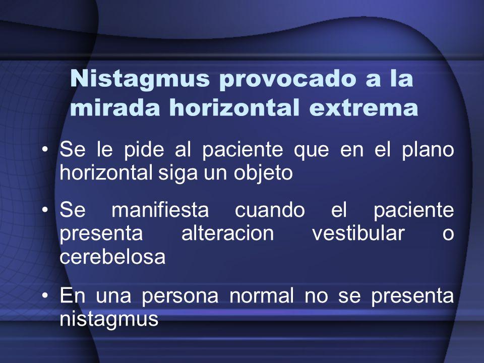 Nistagmus provocado a la mirada horizontal extrema