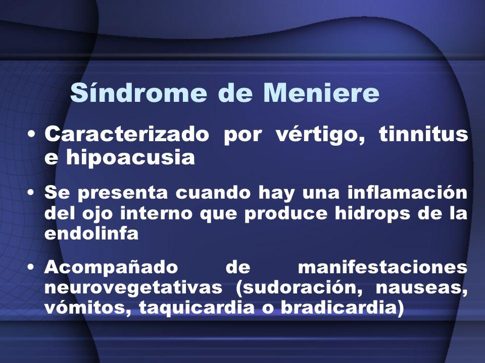 Síndrome de Meniere Caracterizado por vértigo, tinnitus e hipoacusia