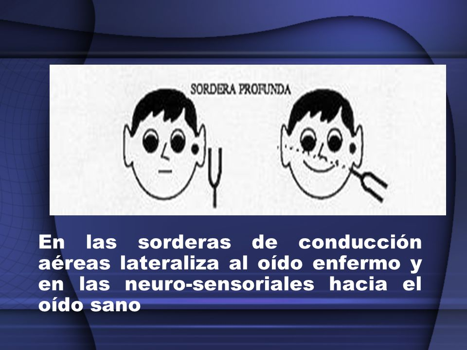 En las sorderas de conducción aéreas lateraliza al oído enfermo y en las neuro-sensoriales hacia el oído sano