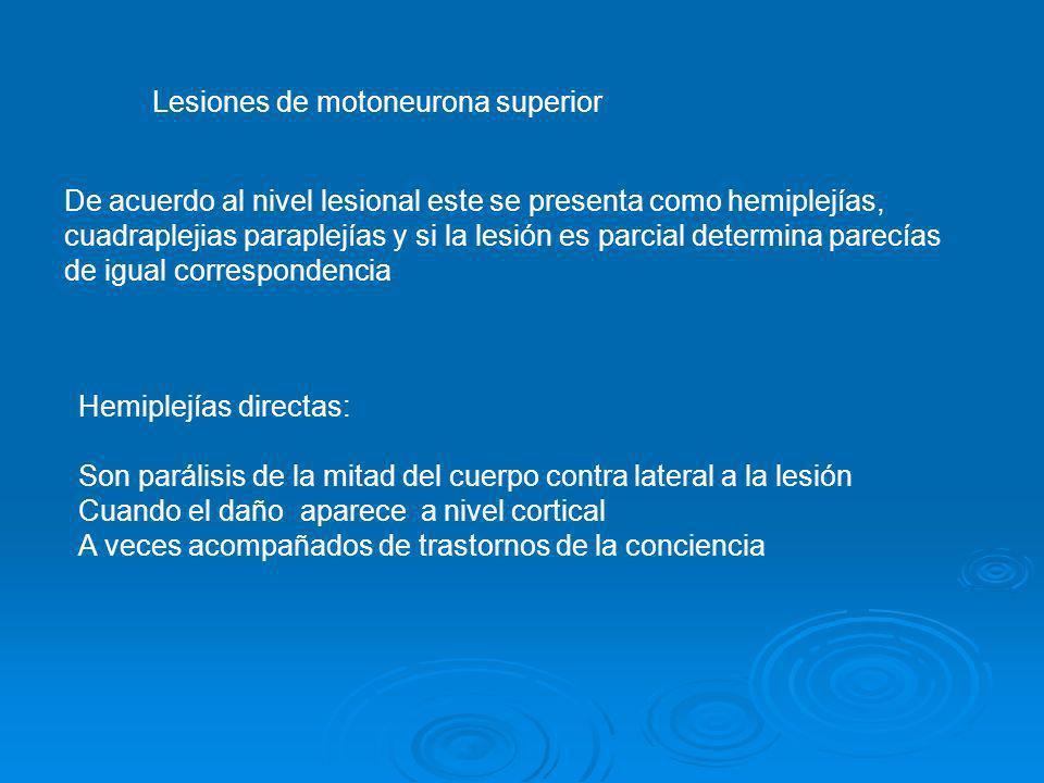 Lesiones de motoneurona superior