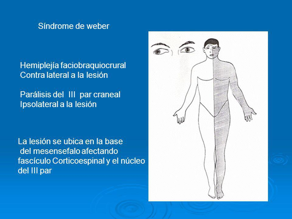 Síndrome de weberHemiplejía faciobraquiocrural. Contra lateral a la lesión. Parálisis del III par craneal.