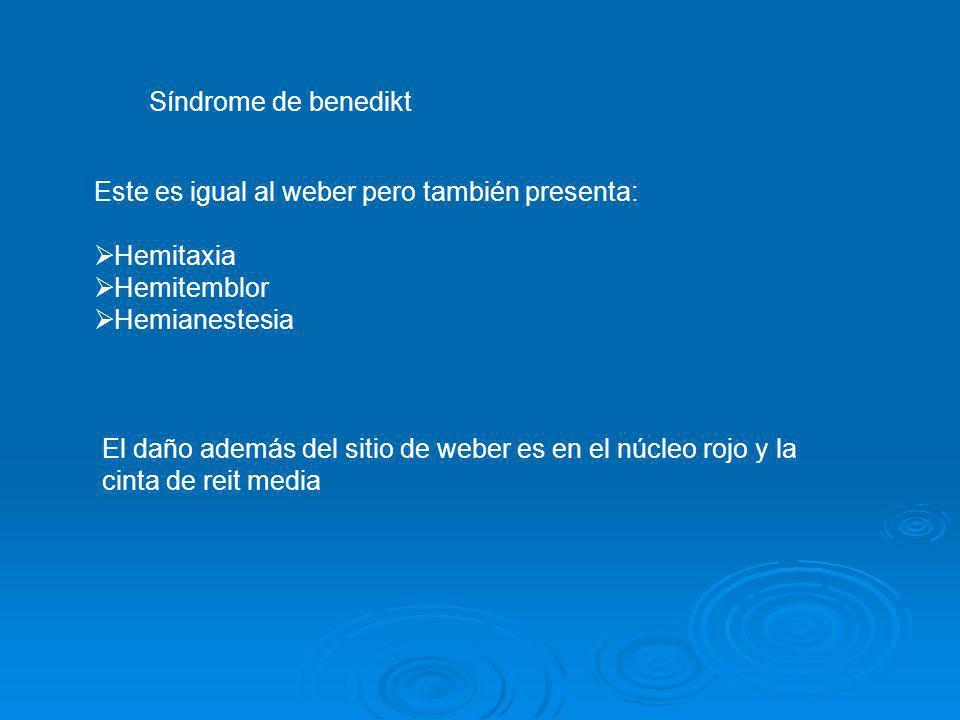 Síndrome de benediktEste es igual al weber pero también presenta: Hemitaxia. Hemitemblor. Hemianestesia.