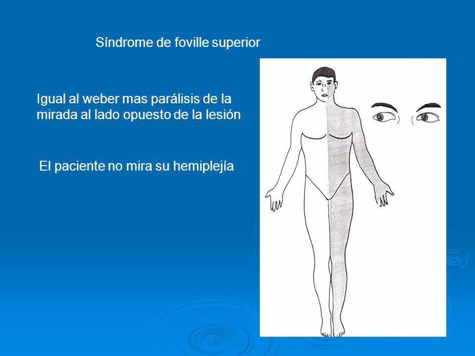 Síndrome de foville superior