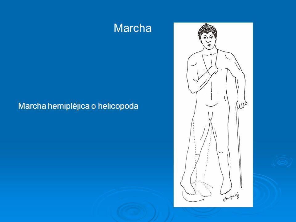 Marcha Marcha hemipléjica o helicopoda