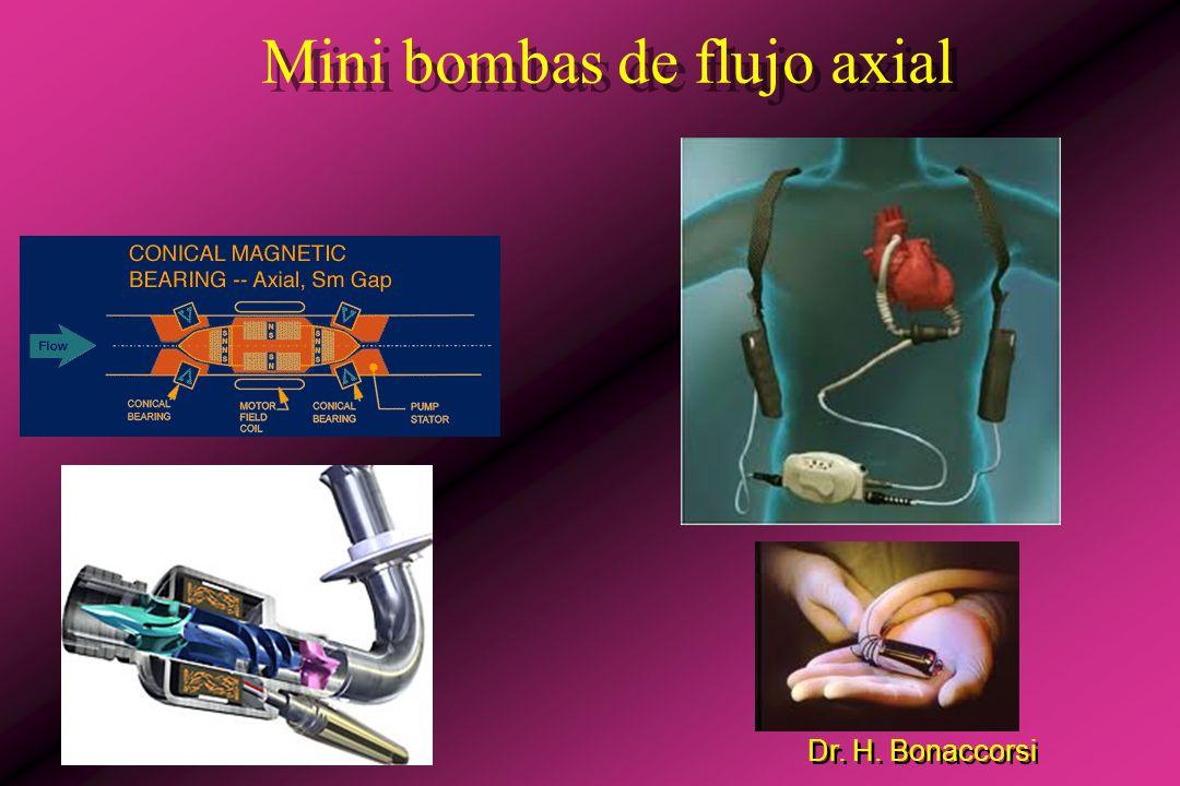 Mini bombas de flujo axial