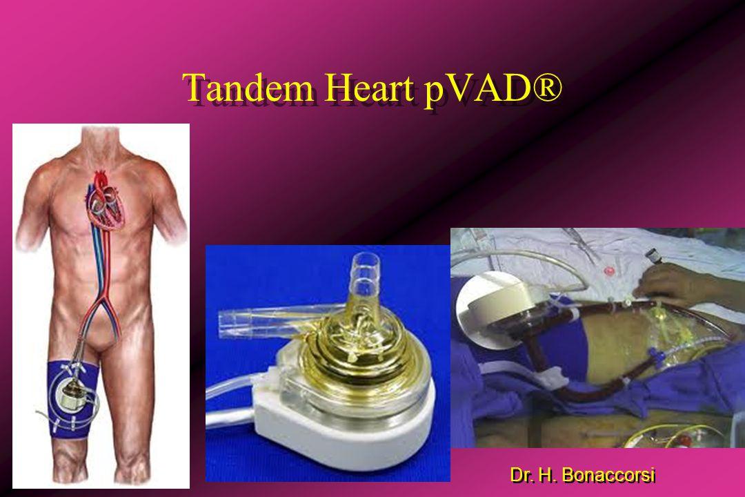 Tandem Heart pVAD®