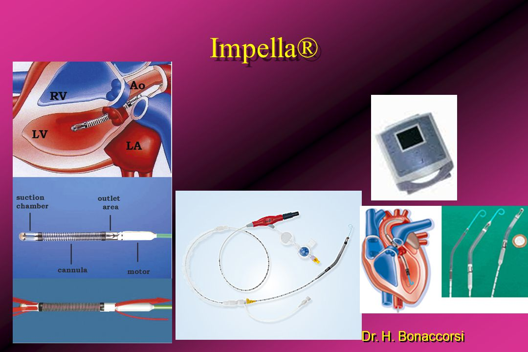 Impella®