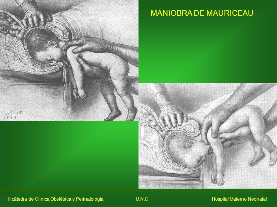 MANIOBRA DE MAURICEAU