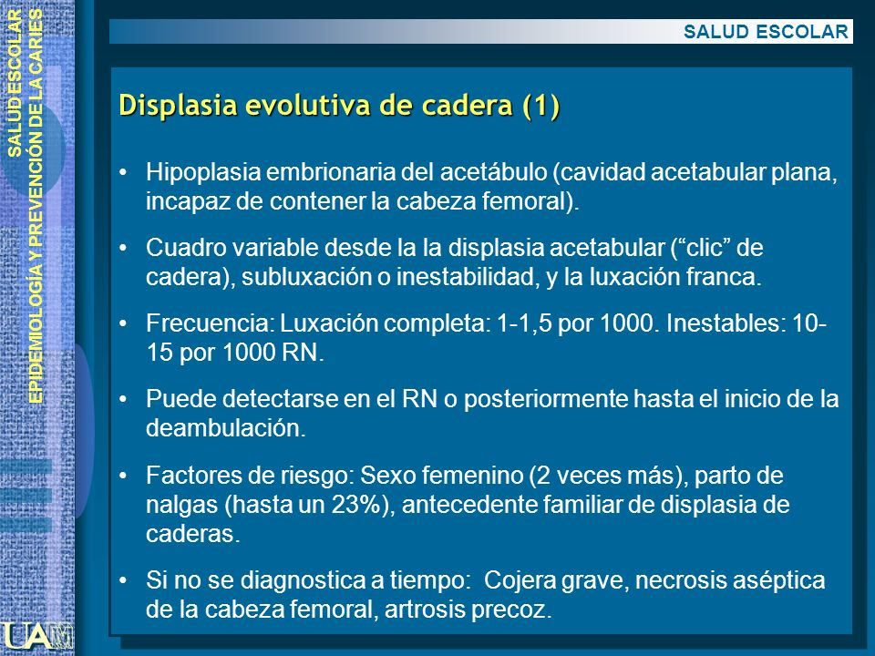 Displasia evolutiva de cadera (1)