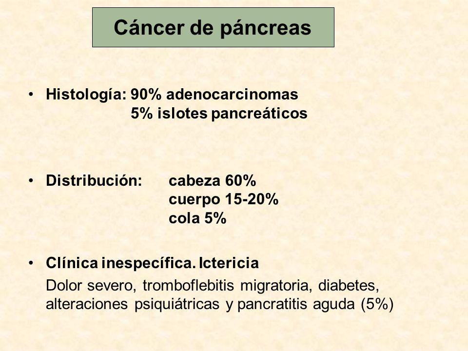Cáncer de páncreas Histología: 90% adenocarcinomas 5% islotes pancreáticos.