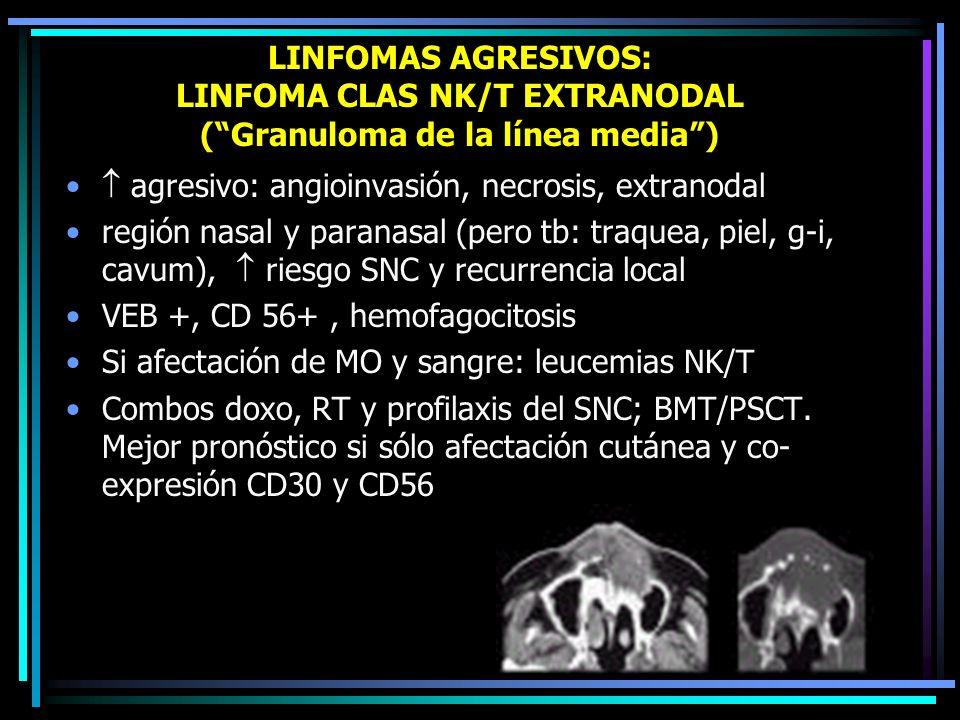 LINFOMAS AGRESIVOS: LINFOMA CLAS NK/T EXTRANODAL ( Granuloma de la línea media )