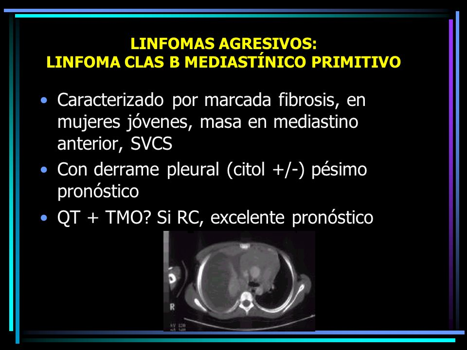 LINFOMAS AGRESIVOS: LINFOMA CLAS B MEDIASTÍNICO PRIMITIVO