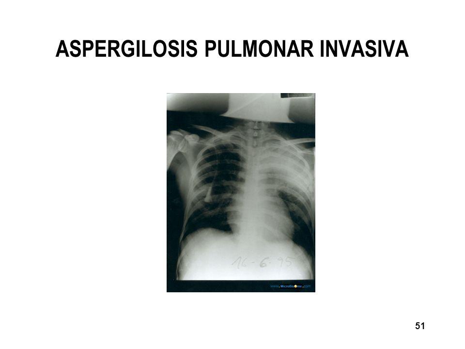 ASPERGILOSIS PULMONAR INVASIVA