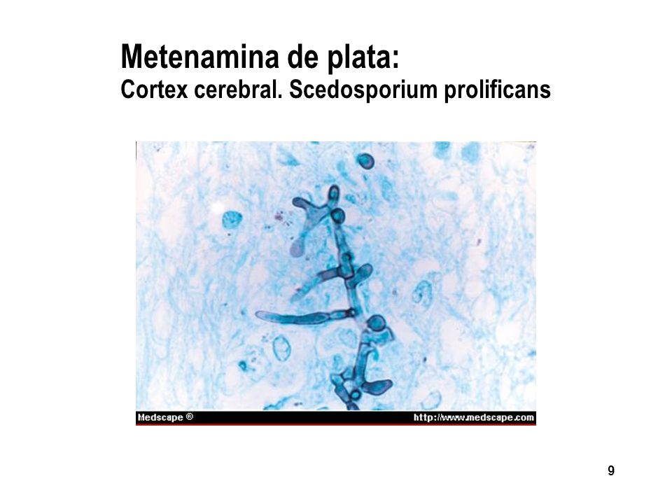 Metenamina de plata: Cortex cerebral. Scedosporium prolificans