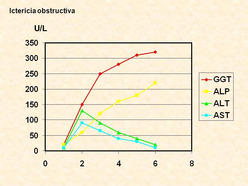 Ictericia obstructiva U/L