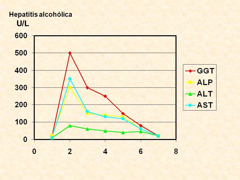 Hepatitis alcohólica U/L